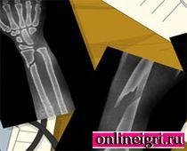 Больница: Открытый перелом руки